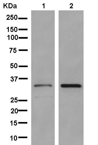 Western blot - Anti-RPIA/PRI antibody [EPR12961] (ab181235)