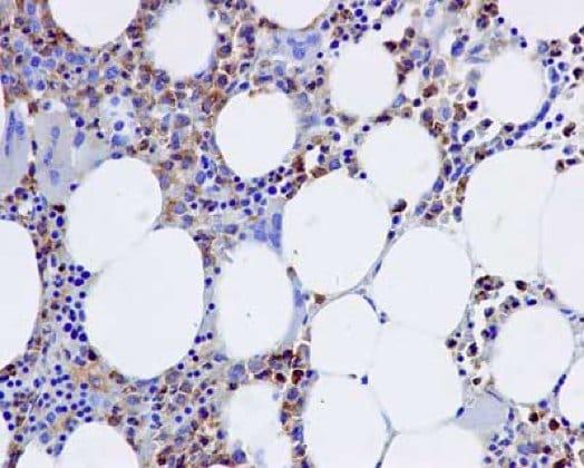 Immunohistochemistry (Formalin/PFA-fixed paraffin-embedded sections) - Anti-D4 GDI antibody [EPR14212(B)] (ab181252)