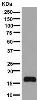 Western blot - Anti-FXYD6/Plp antibody [EPR9004(2)] (ab181254)