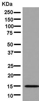 Western blot - Anti-CRABP2 antibody [EPR14256(B)] (ab181255)