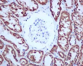 Immunohistochemistry (Formalin/PFA-fixed paraffin-embedded sections) - Anti-ALDH4A1/P5CDH antibody [EPR14288(B)] (ab181256)
