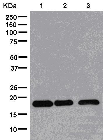 Western blot - Anti-NME3 antibody [EPR13117] (ab181257)