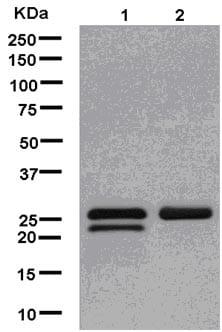 Western blot - Anti-TPD52 antibody [EPR14219] (ab181260)