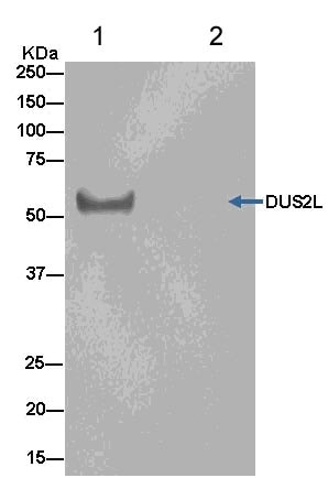 Immunoprecipitation - Anti-DUS2L antibody [EPR14042] (ab181262)