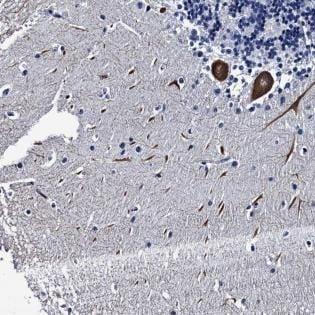 Immunohistochemistry (Formalin/PFA-fixed paraffin-embedded sections) - Anti-LRRC30 antibody (ab181267)