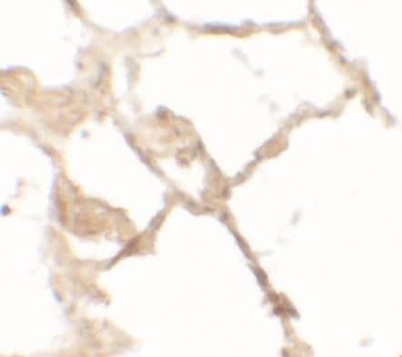 Immunohistochemistry - Anti-TFEB antibody (ab181342)