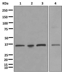 Western blot - Anti-SCP3 antibody [EPR12695(B)] (ab181354)