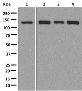 Western blot - Anti-NUP133 antibody [EPR10809] (ab181355)
