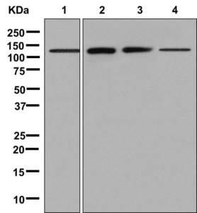 Western blot - Anti-Phosphorylase B/PHKB antibody [EPR9035(2)] (ab181360)