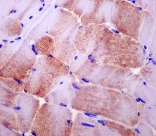 Immunohistochemistry (Formalin/PFA-fixed paraffin-embedded sections) - Anti-SMYD1 antibody [EPR13574(B)-30] (ab181372)