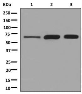 Western blot - Anti-Klotho antibody [EPR6856] (ab181373)
