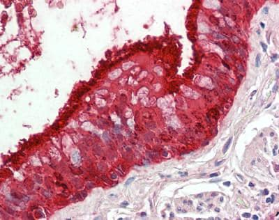 Immunohistochemistry (Formalin/PFA-fixed paraffin-embedded sections) - Anti-ALDH3A1 antibody - C-terminal (ab181405)