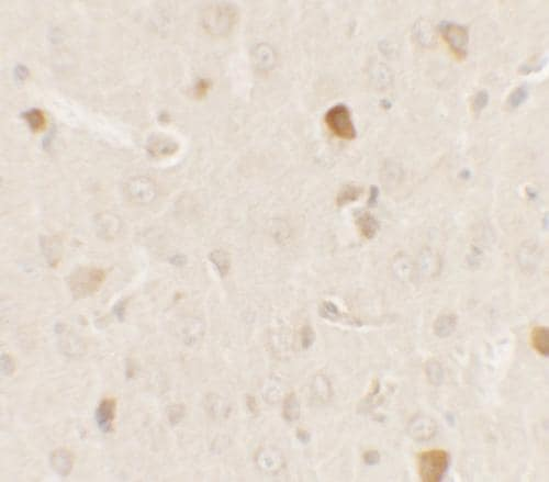 Immunohistochemistry (Formalin/PFA-fixed paraffin-embedded sections) - Anti-PRAS40 antibody - C-terminal (ab181408)