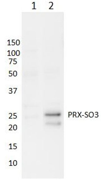Over-oxidized Peroxiredoxin Western Blot.