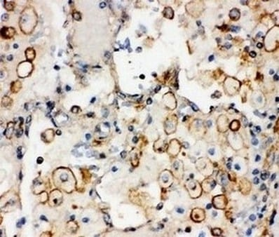 Immunohistochemistry (Formalin/PFA-fixed paraffin-embedded sections) - Anti-Integrin alpha 1 antibody - C-terminal (ab181434)