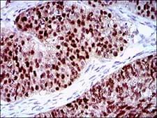 Immunohistochemistry (Formalin/PFA-fixed paraffin-embedded sections) - Anti-PLAGL1 / ZAC antibody [8D8C5] (ab181457)