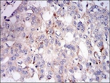 Immunohistochemistry (Formalin/PFA-fixed paraffin-embedded sections) - Anti-ADFP antibody [2C5A3] (ab181463)