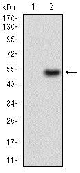 Western blot - Anti-Carbonic Anhydrase 9/CA9 antibody [10F7A8] - N-terminal (ab181464)
