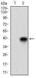 Western blot - Anti-CD74 antibody [2D1B3] - N-terminal (ab181465)