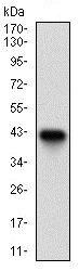 Western blot - Anti-Tartrate Resistant Acid Phosphatase antibody [7E6A11] (ab181468)