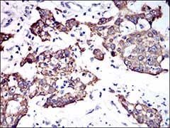 Immunohistochemistry (Formalin/PFA-fixed paraffin-embedded sections) - Anti-Cytokeratin 5 antibody [10C11E6] (ab181491)
