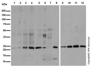 Western blot - Anti-Ubiquitin (linkage-specific K27) antibody [EPR17034] (ab181537)