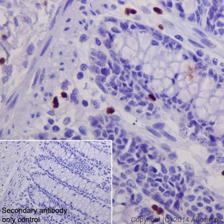 Immunohistochemistry (Formalin/PFA-fixed paraffin-embedded sections) - Anti-GATA1 antibody [EPR17362] - ChIP Grade (ab181544)