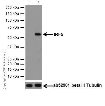 Western blot - Anti-IRF5 antibody [EPR17067] (ab181553)