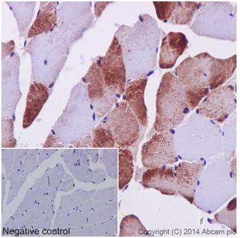 Immunohistochemistry (Formalin/PFA-fixed paraffin-embedded sections) - Anti-MEK3 + MEK6 antibody [EPR17345] (ab181555)