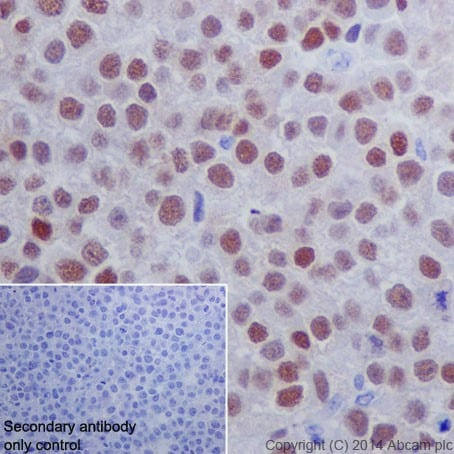 Immunohistochemistry (Formalin/PFA-fixed paraffin-embedded sections) - Anti-Oct4 antibody [EPR17929] (ab181557)