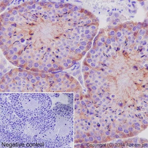 Immunohistochemistry (Formalin/PFA-fixed paraffin-embedded sections) - Anti-PKC antibody [EPR17368] (ab181558)