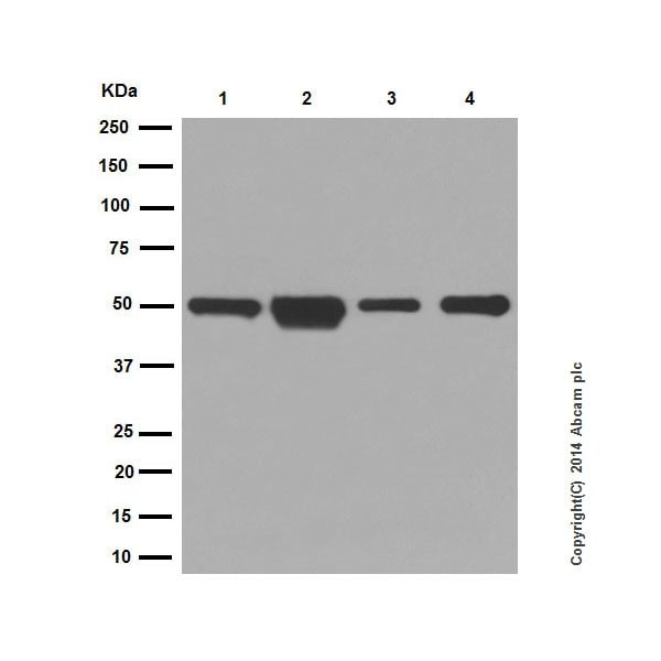 Western blot - Anti-Cytokeratin 14 antibody [EPR17350] - Cytoskeleton Marker (ab181595)
