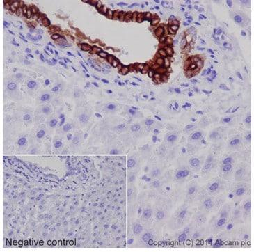 Immunohistochemistry (Formalin/PFA-fixed paraffin-embedded sections) - Anti-Cytokeratin 7 antibody [EPR17078] - Cytoskeleton Marker (ab181598)