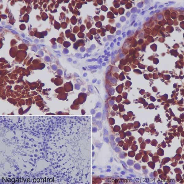 Immunohistochemistry (Formalin/PFA-fixed paraffin-embedded sections) - Anti-Hsp70 antibody [EPR16892] (ab181606)