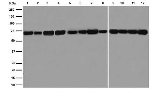 Western blot - Anti-Hsp70 antibody [EPR16892] (ab181606)