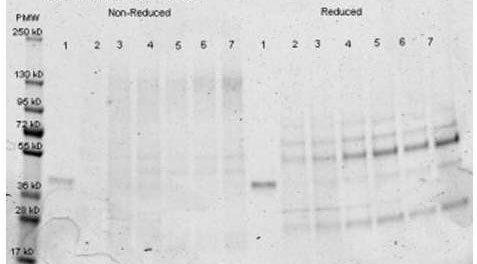 Immunoprecipitation - Anti-Aldolase antibody (HRP) (ab181662)