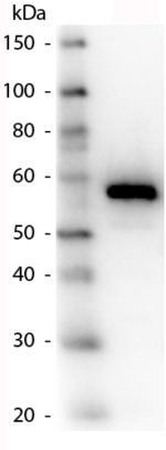 Western blot - Anti-Carboxypeptidase Y antibody (ab181691)
