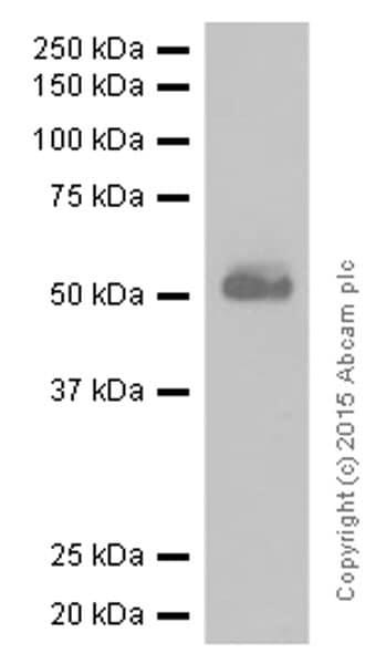 Western blot - Anti-CD4 antibody [EPR6855] - BSA and Azide free (ab181724)