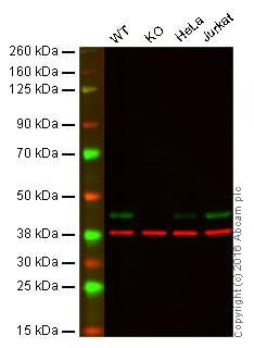 Western blot - Anti-CSNK2A1 antibody [13B5] - N-terminal (ab181734)