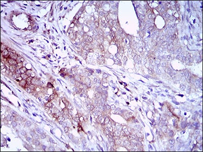 Immunohistochemistry (Formalin/PFA-fixed paraffin-embedded sections) - Anti-CD22 antibody [2H1C4] (ab181771)