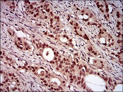 Immunohistochemistry (Formalin/PFA-fixed paraffin-embedded sections) - Anti-p95/NBS1 antibody [7E4C2] (ab181780)