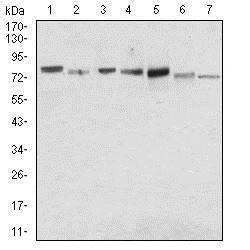 Western blot - Anti-Syndecan-1 antibody [1A3H4] (ab181789)