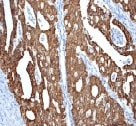 Immunohistochemistry (Formalin/PFA-fixed paraffin-embedded sections) - Anti-Anterior Gradient 2 antibody [EPR3278] - BSA and Azide free (ab181829)