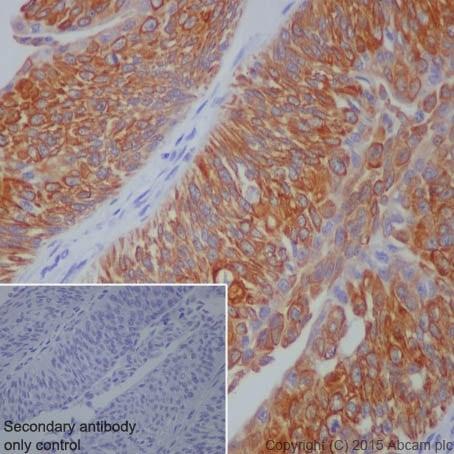 Immunohistochemistry (Formalin/PFA-fixed paraffin-embedded sections) - Anti-Cytokeratin 7 antibody [EPR1619Y] - BSA and Azide free (ab181831)