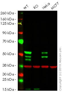 Western blot - Anti-Cytokeratin 7 antibody [EP1620Y] - BSA and Azide free (ab181832)