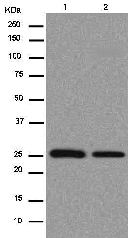 Western blot - Anti-MRPL16 antibody [EPR14351-63] (ab181840)