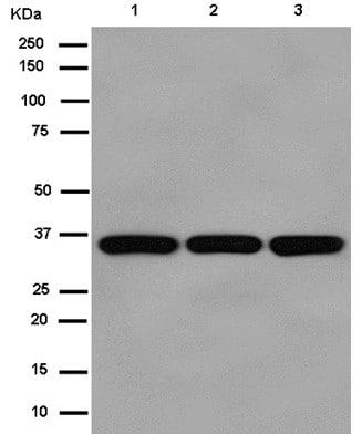Western blot - Anti-MDH2 antibody [EPR14883(B)] (ab181857)