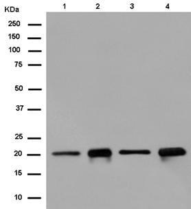 Western blot - Anti-RAP1A + RAP1B antibody [EPR14815(B)] (ab181858)