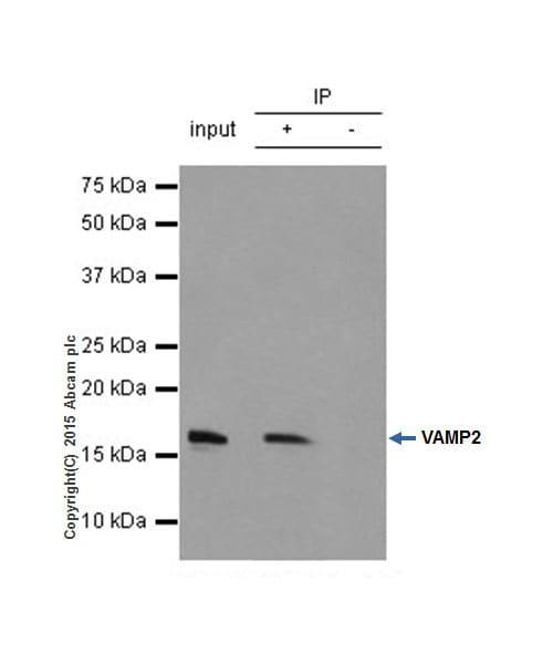 Immunoprecipitation - Anti-VAMP2 antibody [EPR12790] (ab181869)