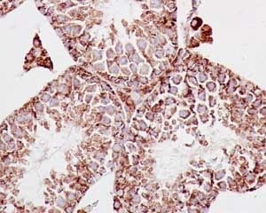 Immunohistochemistry (Formalin/PFA-fixed paraffin-embedded sections) - Anti-MDH2 antibody [EPR14882(B)] (ab181873)